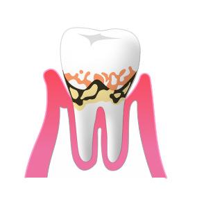 ②歯周病(軽度)