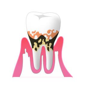 ③歯周病(中度)