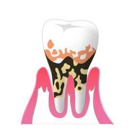 ④歯周病(重度)