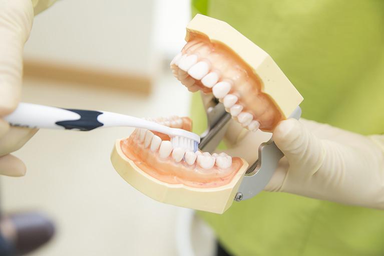 予防歯科とは?